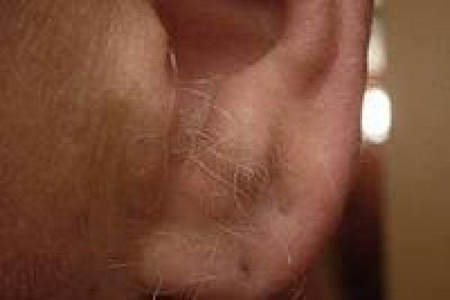почему из ушей растут волосы