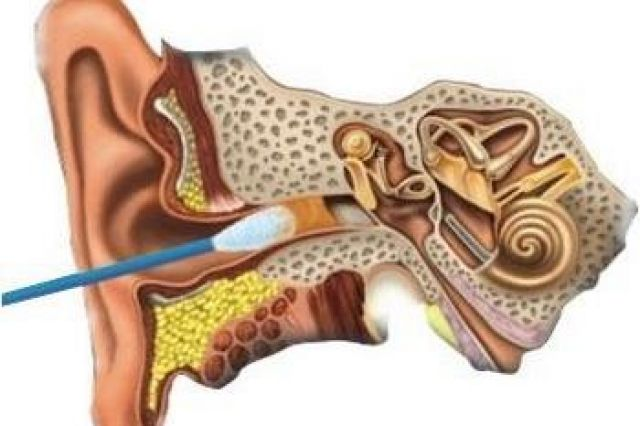 Как избавиться от ушной пробки в домашних условиях ребенку