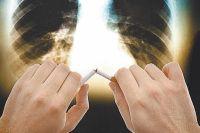 Брось курить - и через полгода снова задышишь.