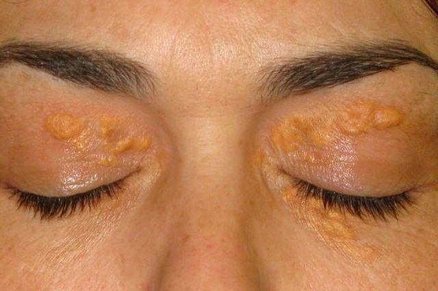Такие жироподобные желтоватые пятна пациенты считают косметическим недостатком.